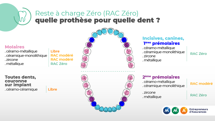 reste-a-charge-zero-dentaire-VDEF.jpg